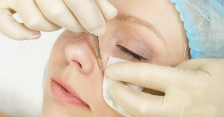What Are Deep Blackheads And How To Safely Remove Them