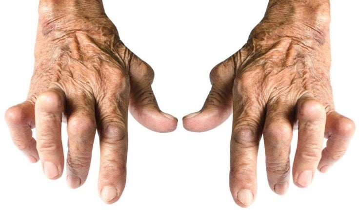 Arthritis in fingers
