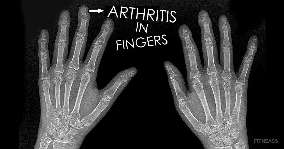 How To Get Rid Of Arthritis In Fingers With A Therapy Ball