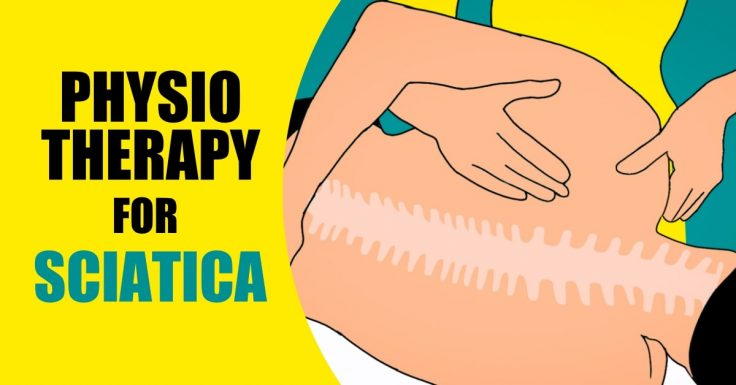 Physiotherapy can help you treat sciatica.