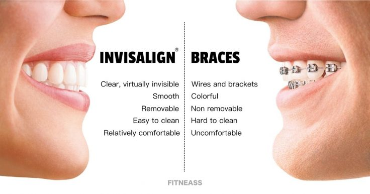Invisalign Braces vs Metal Braces