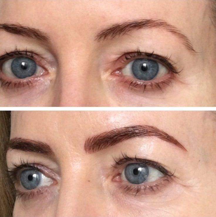 Medical Procedures That Enhance Your Beauty - Microblading