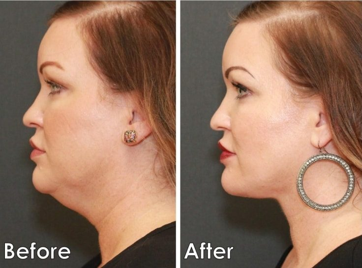 Medical Procedures That Enhance Your Beauty - Neck Lift