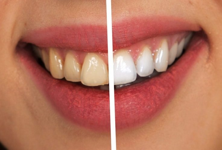Medical Procedures That Enhance Your Beauty - Teeth Whitening