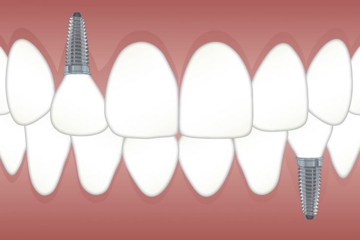 Understanding How A Dental Implant Actually Work