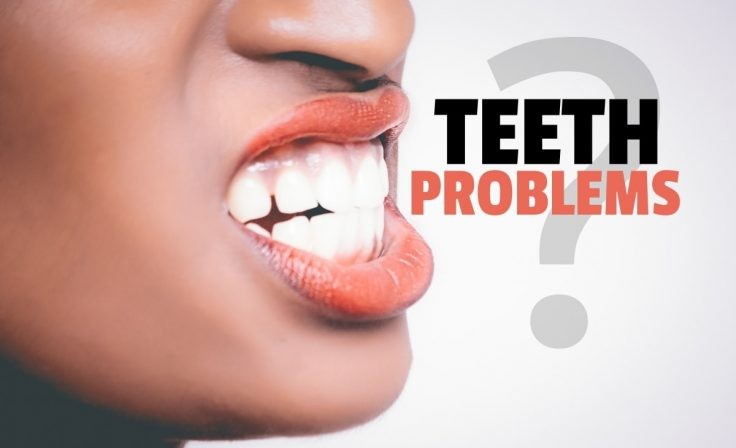 Fixing The Most Common Teeth Problems