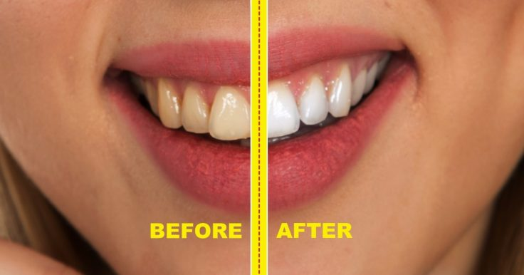 11 Practical Tips To Avoid Stains On Your Teeth