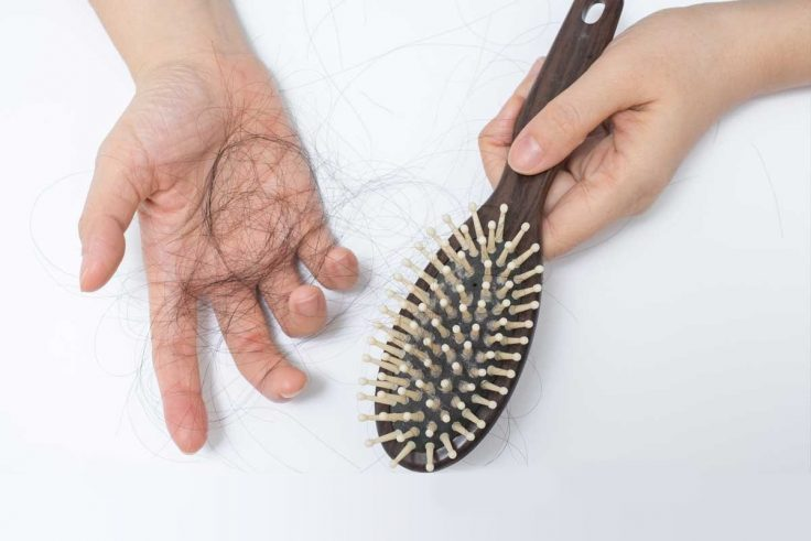 How To Treat Thyroid Hair Loss