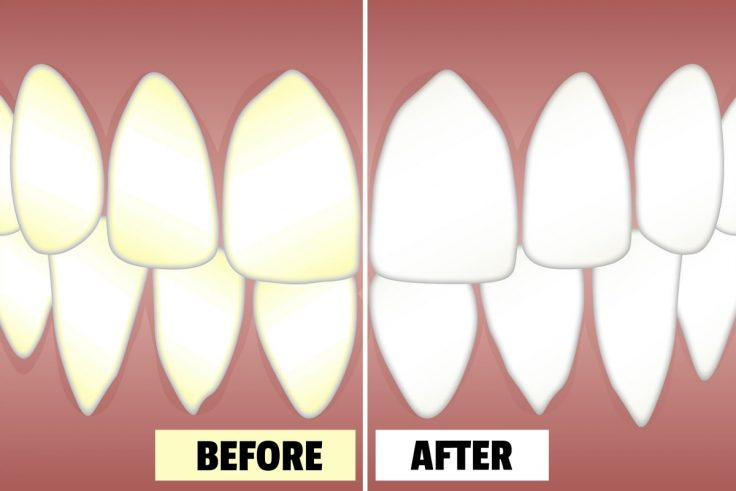Teeth Bleaching Methods To Whiten Your Teeth At Home
