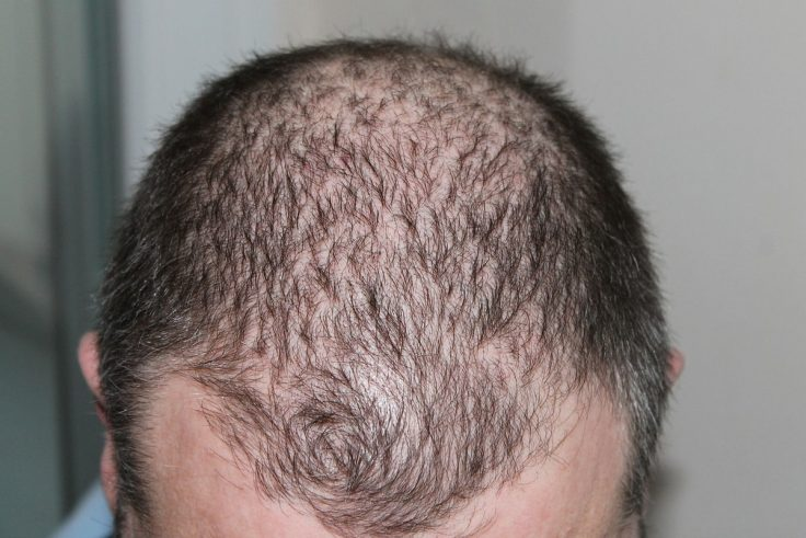 The Advantages Of A Hair Transplant Surgery