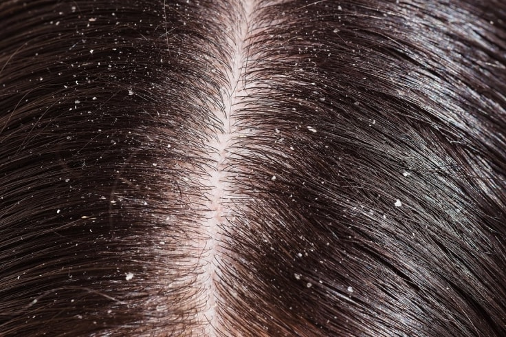 The Best Hair Care Routine For Hair With Dandruff