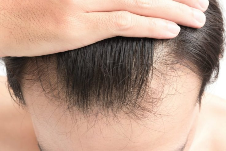 7 Simple Ways To Help Prevent Hair Loss In Men