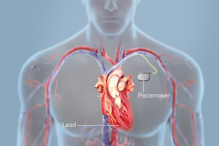 All You Need To Know About Living With A Pacemaker