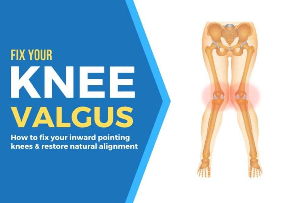 How To Fix Knee Valgus (Valgus Collapse) - Fitneass