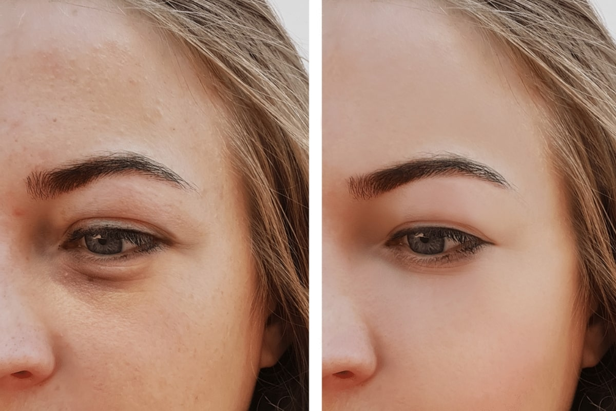 How To Remove Dark Circles Under Eyes Permanently - Fitneass