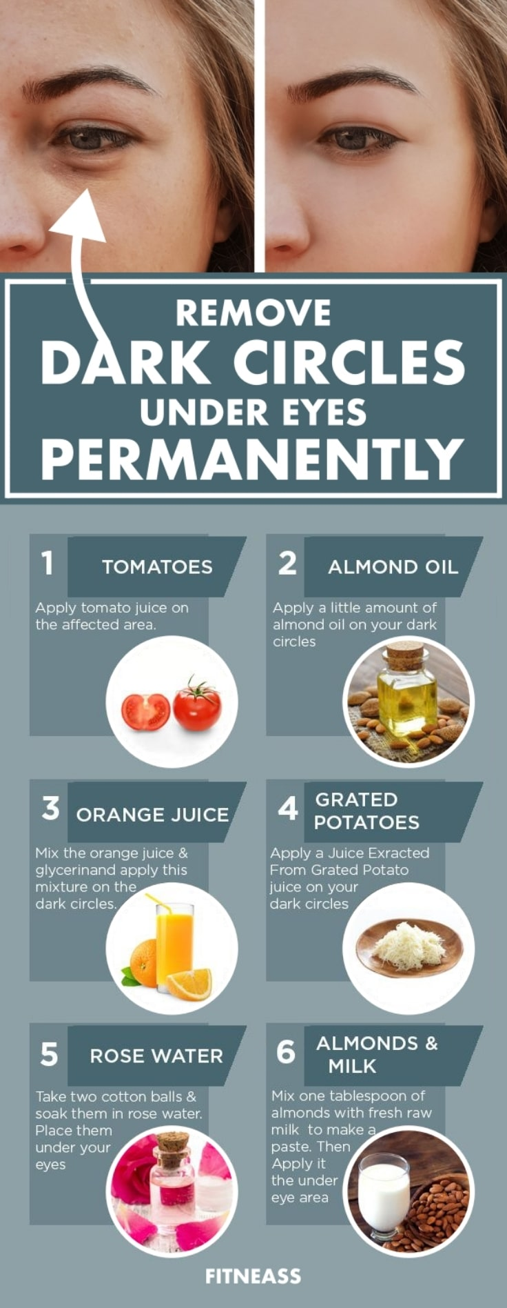 Remove Dark Circles Under Eyes Permanently