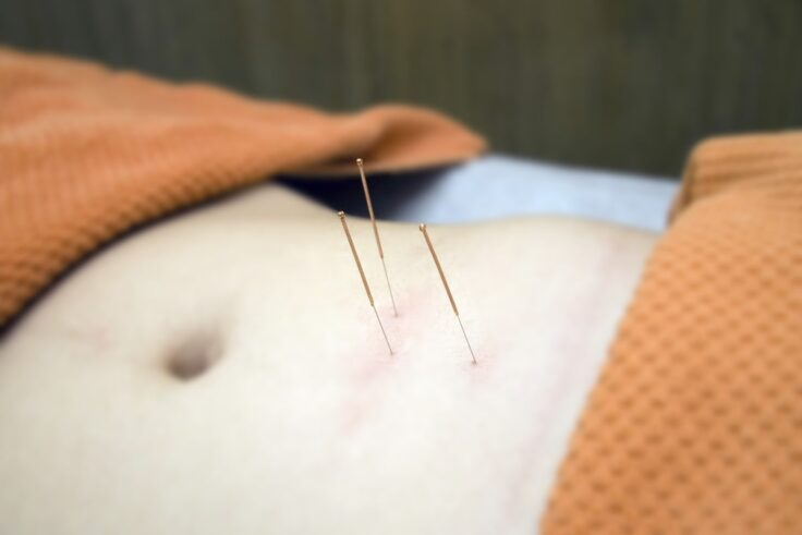 Acupuncture - The Key To Restoring Your Health