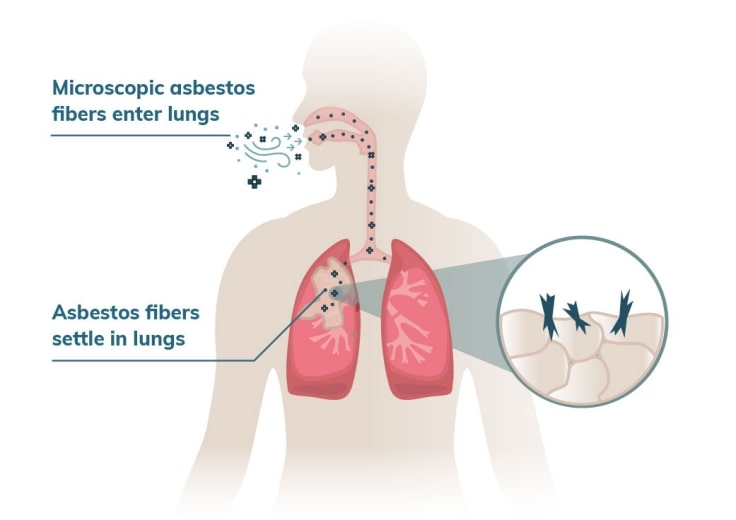 Asbestos And The Conditions It Can Cause