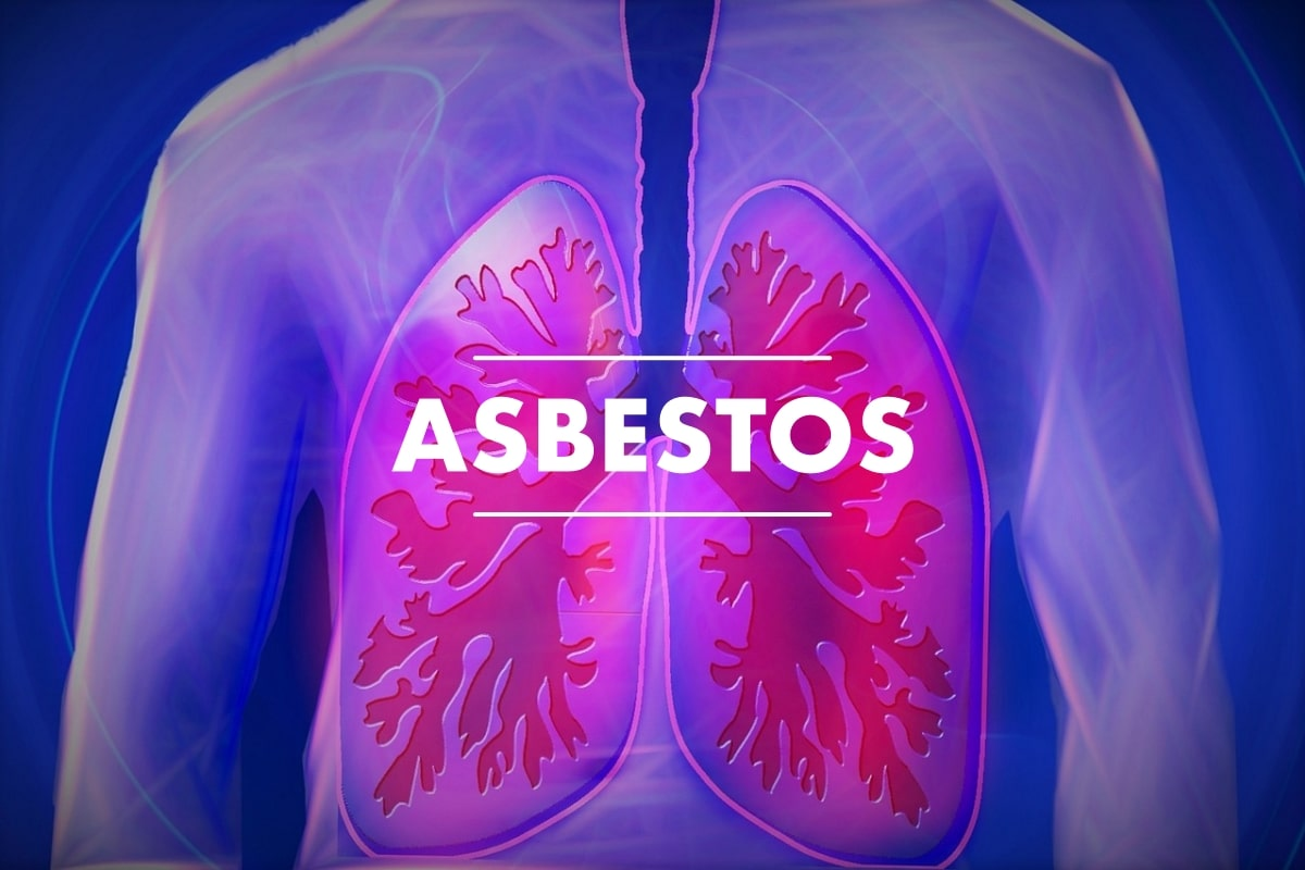 Asbestos In Our Environment - Is This A Cause For Concern? - Fitneass