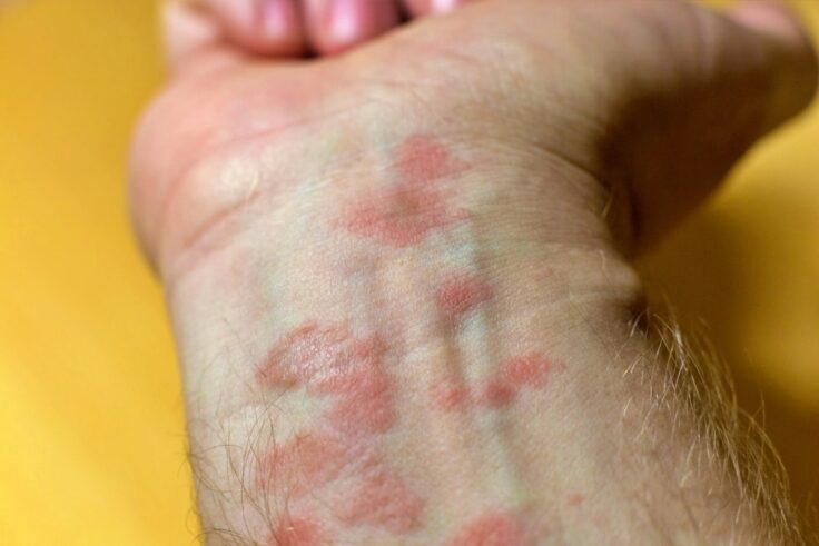 How To Reduce And Relieve Eczema Itching