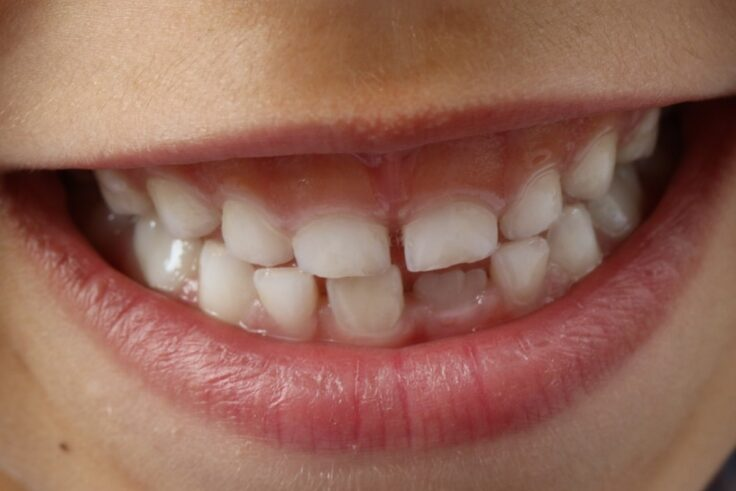 Bruxism - Teeth Grinding And Clenching Your Teeth