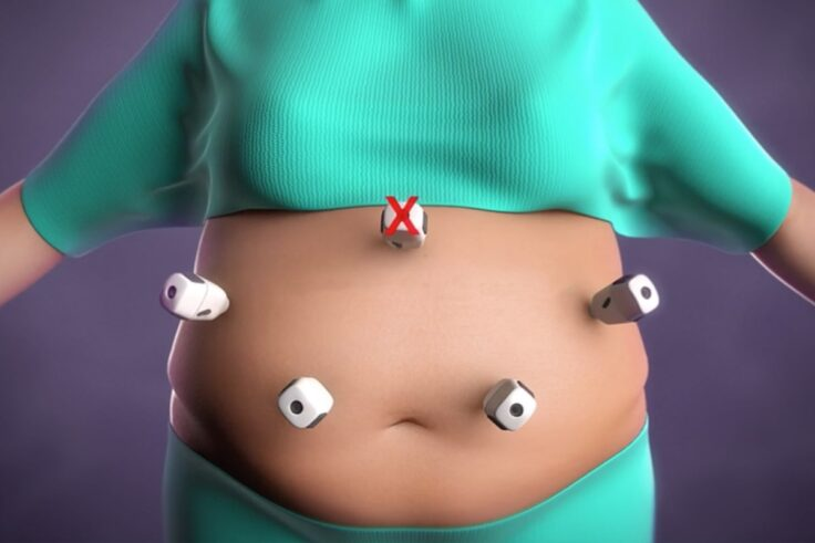 How To Explain Weight Loss Surgery To Children